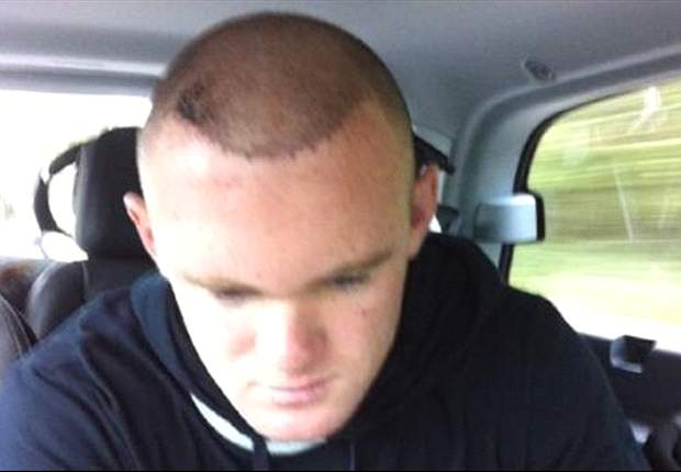 Manchester United striker Wayne Rooney pleased with hair transplant