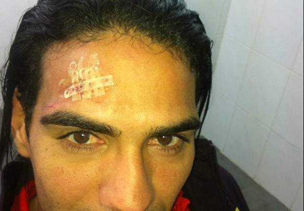 Chelsea target Falcao posts head injury on Twitter after collision with Soldado