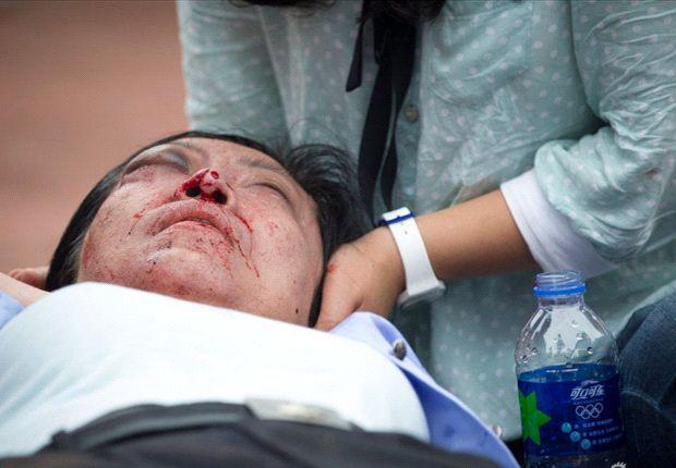 Zeven gewonden rondom evenement bij universiteit