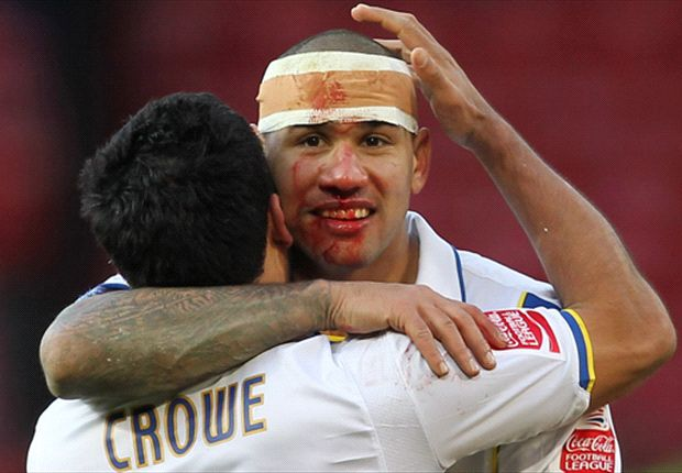 A bloodied Kisnorbo in action against Man Utd