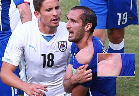 Fifa investigating Suarez bite