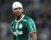 Terrible herida de Felipe Melo tras choque con Yerry Mina
