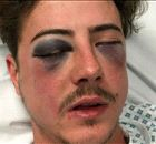 SPURS: Fan savagely beaten up