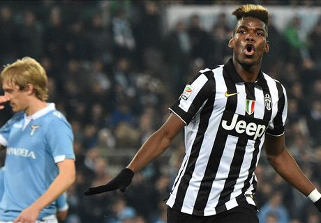 Allegri: Pogba can become world's best