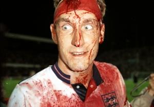 Nel Regno Unito però nessuno potrà mai superare Terry Butcher, in tenuta 'total red' dopo uno scontro di gioco in Inghilterra-Svezia