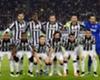 Allegri Bantah Juventus Alami Kelelahan