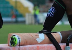 No último domingo, Juninho, lateral-esquerdo do Figueirense, sofreu uma grave lesão após receber uma dura entrada no final do amistoso sem gols contra o Guarani de Palhoça. Confira as imagens do lance