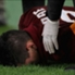 El argentino se lesionó ante Empoli.