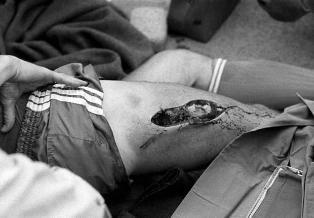 ewald lienen beinverletzung